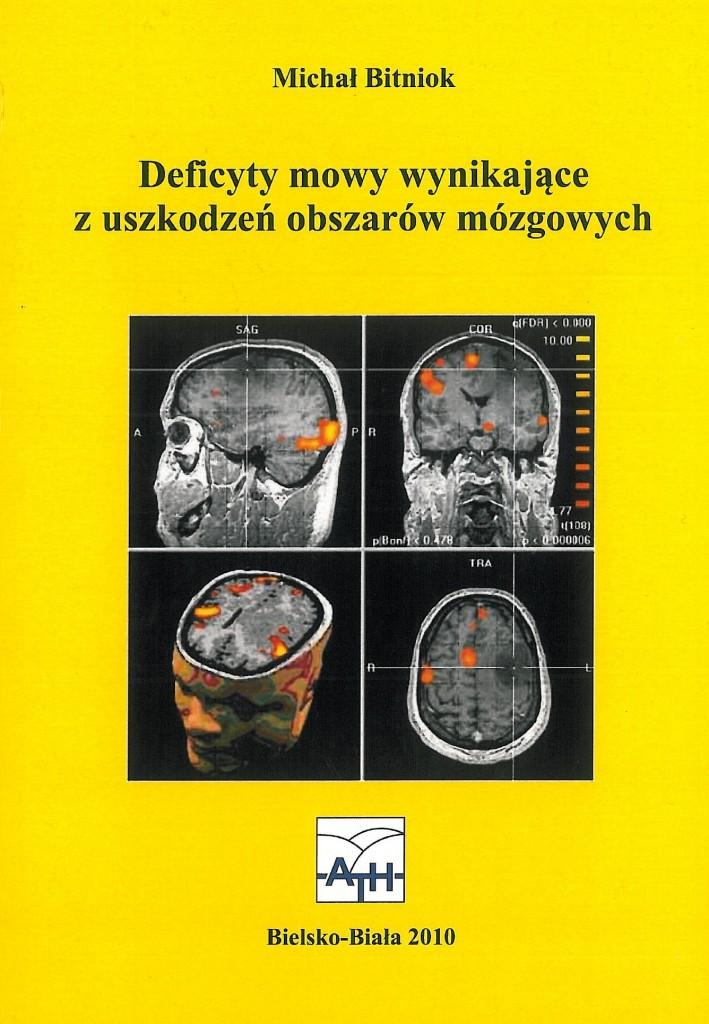 Book Cover: Deficyty mowy wynikające z uszkodzeń...